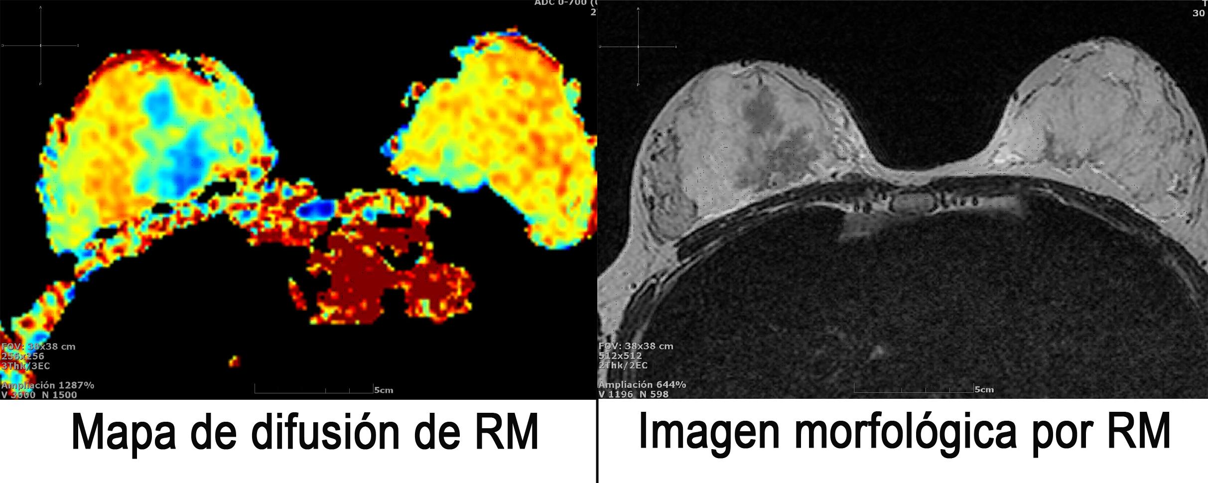 Mapa de difusión e imagen morfológica por RM
