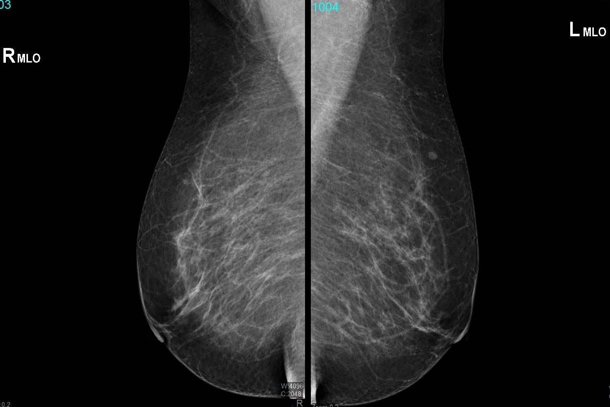 Mamografía RyL