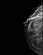 Imagen de una galactografía: Se han rellenado los conductos mamarios dilatados con contraste. Este nos permite ver la sombra del papiloma dentro del conducto relleno de contraste.