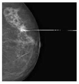 Arpón señalando tumor no palpable para quirófano.