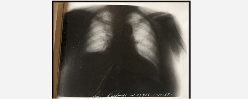 radiografia-antigua