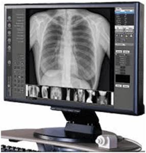 radiografia-torax-digital