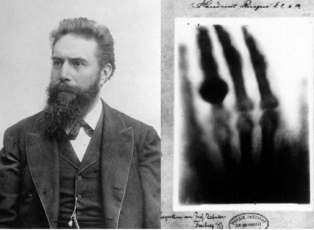 Rontgen-radiografia