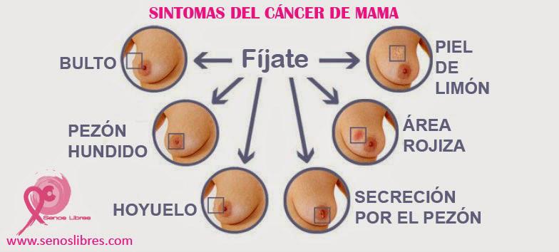 sintomas-cancer-mama