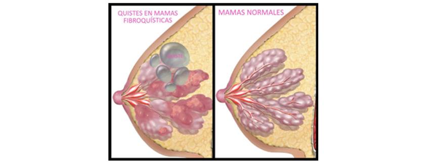 Nodulos en los pechos de la mujer