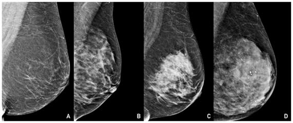 ecografia de mama para que sirve