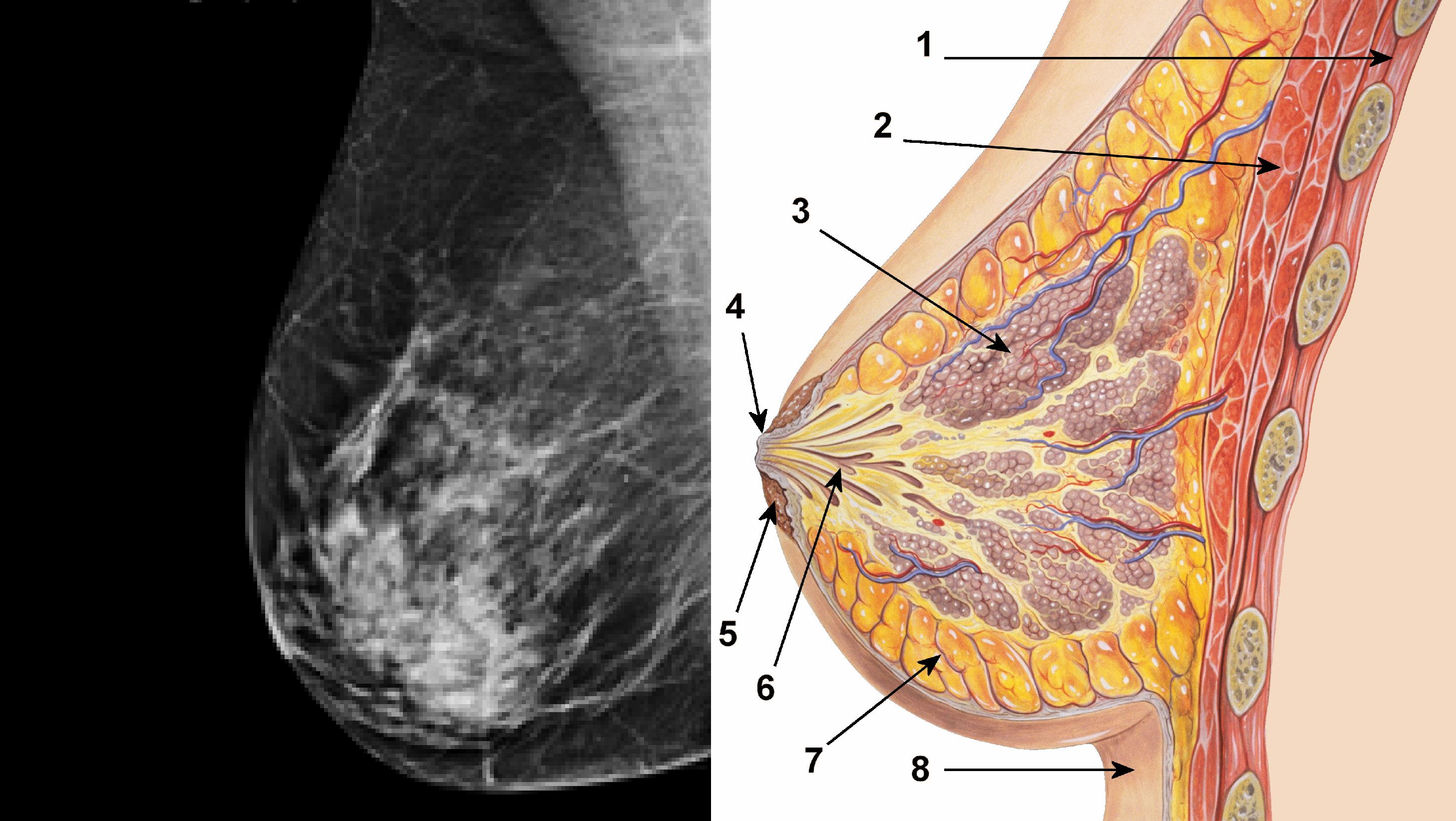 Resultado de imagen para mamografía