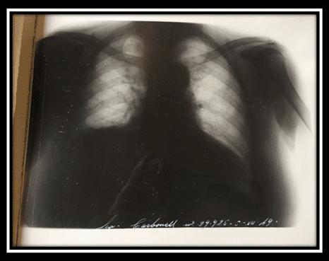 radiografia-torax-1949